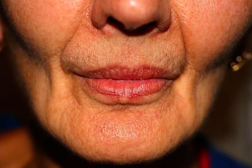 closeup of an older woman with a sunken face